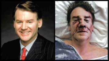 Brian Mulligan before and after he was beaten by two LAPD officers. (Source: Hollywood Reporter)