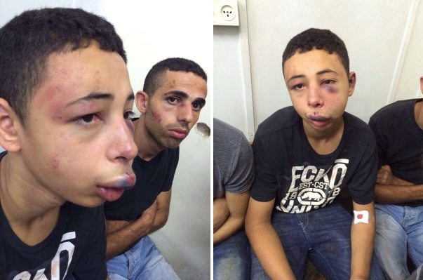 Fifteen-year-old Tariq Abukhdeir after Israeli police beat him. (Addameer)